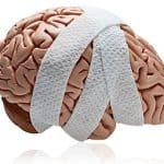 <b>Cedera Kepala</b>